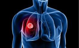 Καρκίνος του πνεύμονα - Νοσ. Φροντίδα