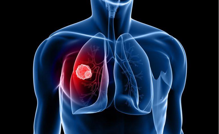 Καρκίνος του πνεύμονα – Νοσ. Φροντίδα