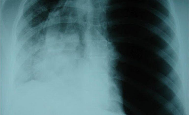 Τι είναι Πνευμοθώρακας; Ποια είναι τα συμπτώματα και η θεραπεία του;