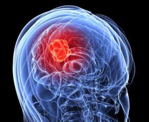 Τι είναι ο όγκος του εγκεφάλου;