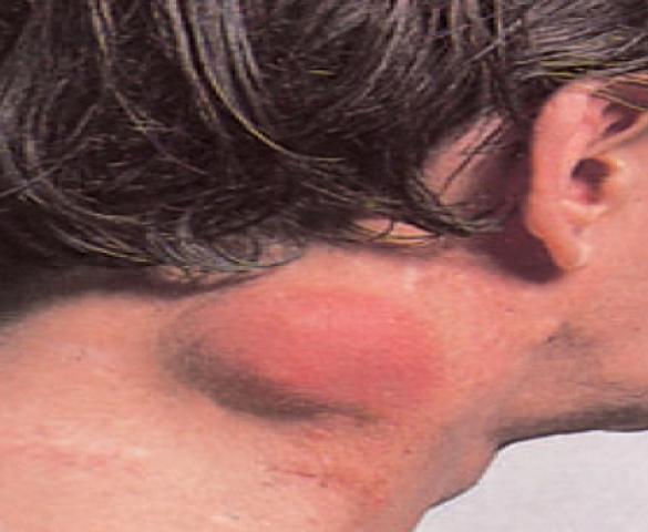Ποια είναι τα συμπτώματα του non-Hodgkin λεμφώματος;
