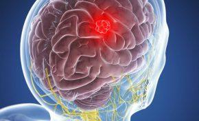 Ποιοί είναι οι τύποι πρωτοπαθών όγκων εγκεφάλου; Ποιά είναι τα συμπτώματα;
