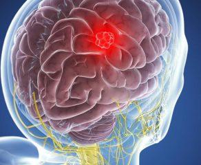 Τι πρέπει να γνωρίζετε για το μηνιγγίωμα; Αιτίες - Συμπτώματα
