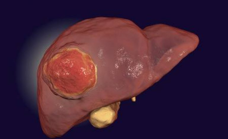 Πρωτοπαθής καρκίνος του ήπατος: Όλα όσα πρέπει να γνωρίζετε
