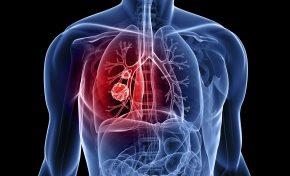 Υπάρχει σχέση μεταξύ ΧΑΠ και καρκίνου του πνεύμονα;