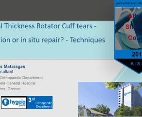 Μερική ρήξη υπερακανθίου: Συρραφή επιτόπου ή ολοκλήρωση και συρραφή; - Partial Thickness Rotator Cuff tears - Completion or in situ repair? Techniques