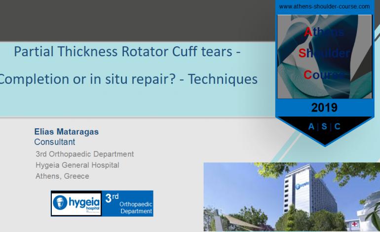Μερική ρήξη υπερακανθίου: Συρραφή επιτόπου ή ολοκλήρωση και συρραφή; – Partial Thickness Rotator Cuff tears – Completion or in situ repair? Techniques