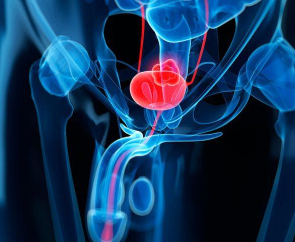 Καρκίνος της ουροδόχου κύστης: Συμπτώματα - Διάγνωση - Στάδια