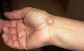 Τι είναι οι κύστεις γαγγλίων; Συμπτώματα, Διάγνωση, Θεραπεία