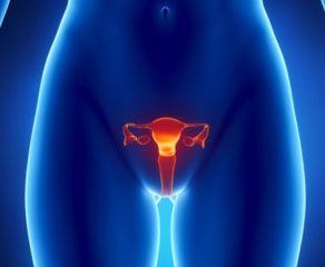 Καρκίνος ωοθηκών: Συμπτώματα, Παράγοντες κινδύνου, Διάγνωση, Θεραπεία