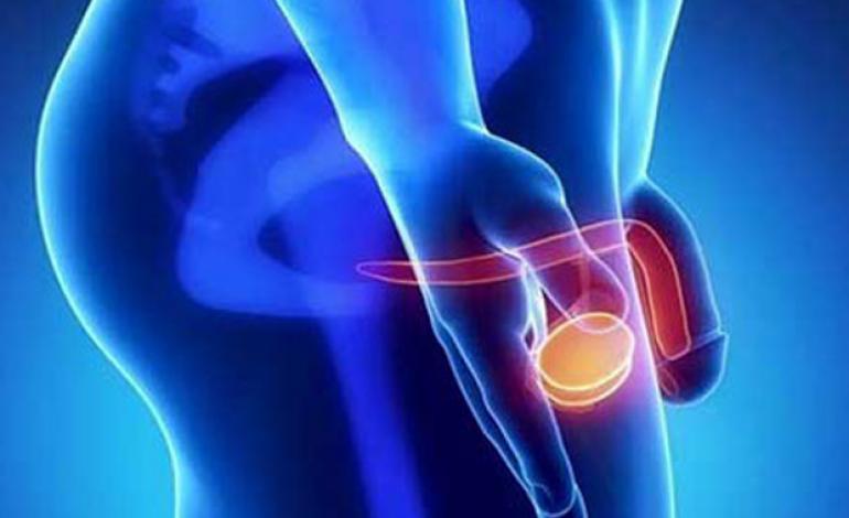 Τι είναι ο καρκίνος του πέους; Συμπτώματα, Αίτια, Διάγνωση, Στάδια