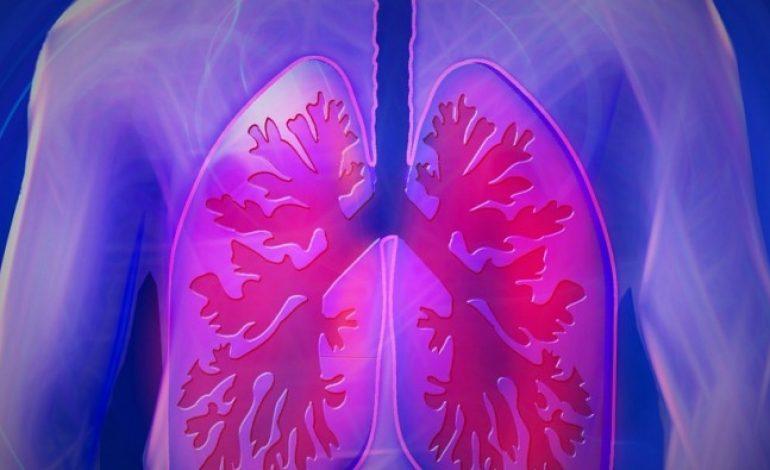 Τι είναι η πνευμονική ίνωση; Συμπτώματα, Διάγνωση