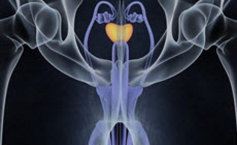 Τι είναι ο Καρκίνος του Προστάτη; Στάδια, Συμπτώματα, Αίτια
