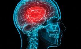Εγκεφαλικό επεισόδιο: Συμπτώματα - Πρόληψη