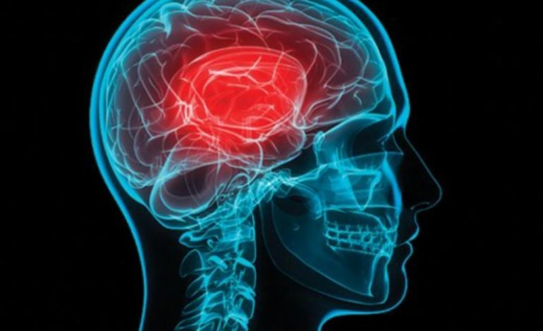 Εγκεφαλικό επεισόδιο: Συμπτώματα – Πρόληψη